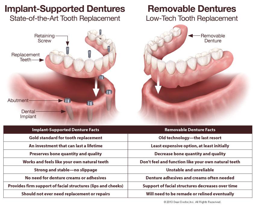Fixed Dentures - Hanover Dental Care