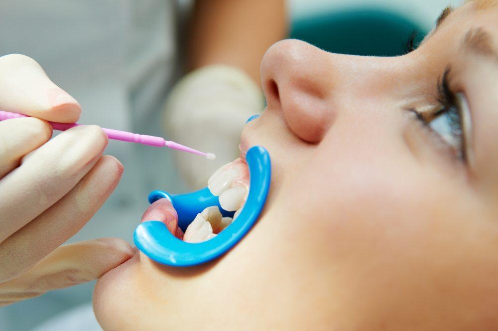 Fluoride Treatment - Hanover Dentist