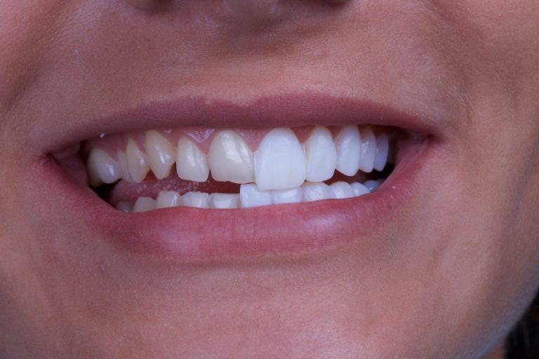 Veneers - Best Dentist in Hanover