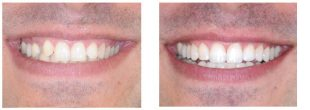 Tooth-Coloured Restoration- Hanover Dentist