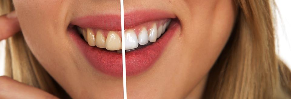 Whitening - Hanover Dental Care