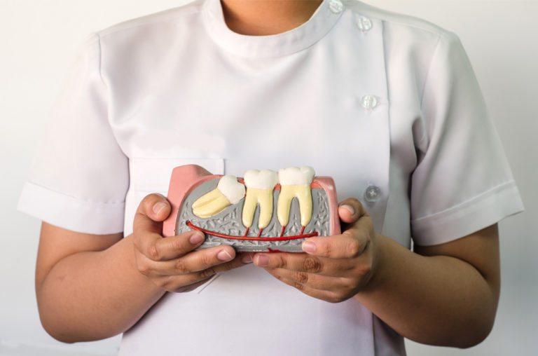 Bonding - Hanover Dental care